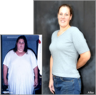 Tracey before and after lapband