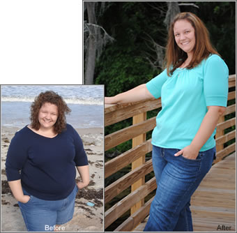 Rhonda before and after lapband