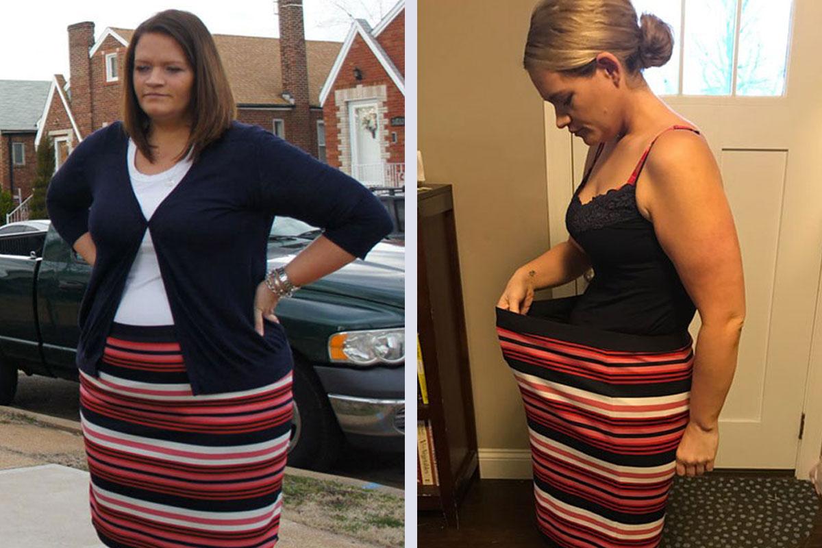 JSAPA Success Story - Lisa before and after surgery