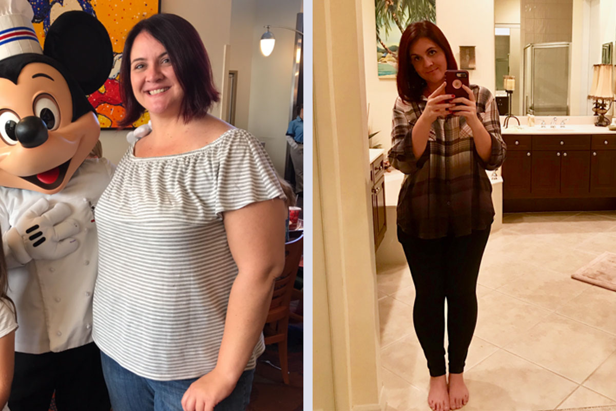 JSAPA Success Story - Renee before and after surgery